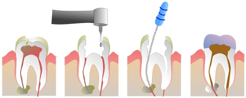 chip tooth no pain