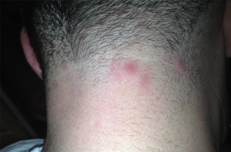 Pimples Near the Hairl...