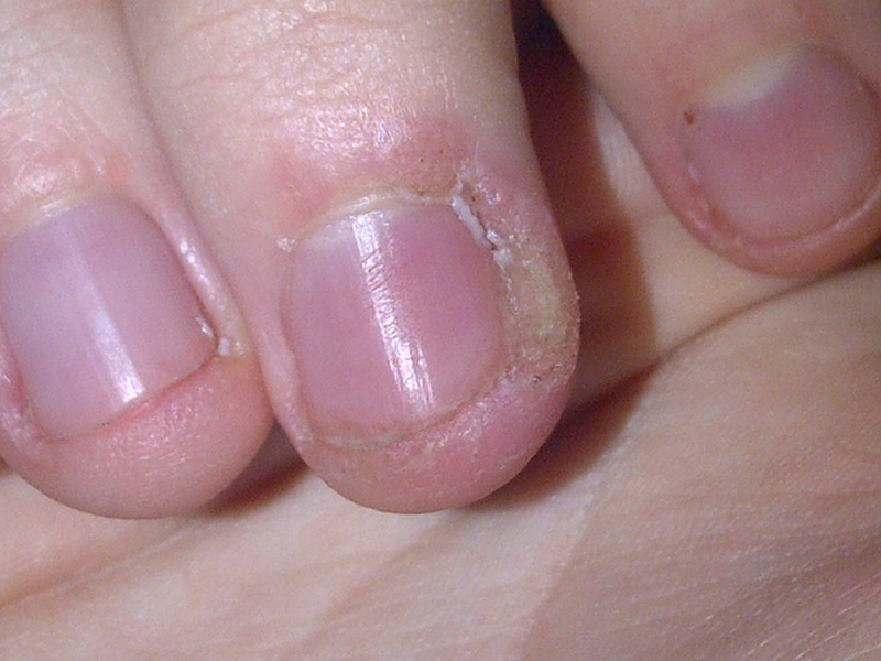 Why Is the Skin Around Your Nails Peeling? - EnkiVeryWell