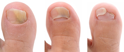 How to Get Rid of Toenail Fungus: 9 Methods (with Pics) - EnkiVeryWell