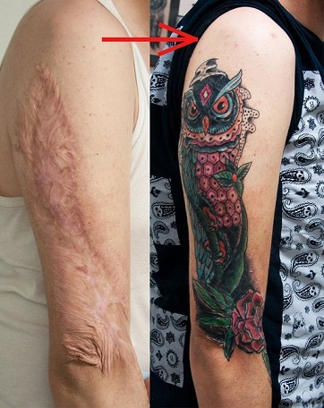 Can You Tattoo Over Scars Enkiverywell