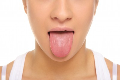 Acromegaly Tongue